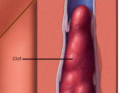 blood clot, Mayo Clinic