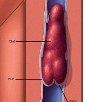blood clot, Mayo Clinic